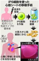 【西論】iPS細胞、新段階に 冷静に成果見極める態度を