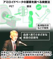 【認知症薬に挑む】(下)日本発創薬「諦めない」 ノーベル賞の技術 血液1滴診断、現実味