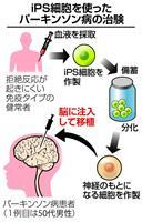 がん化リスク、慎重に検証必要 パーキンソン病のiPS治験
