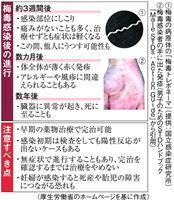 梅毒急増、大阪に危機感 目立つ20代女性
