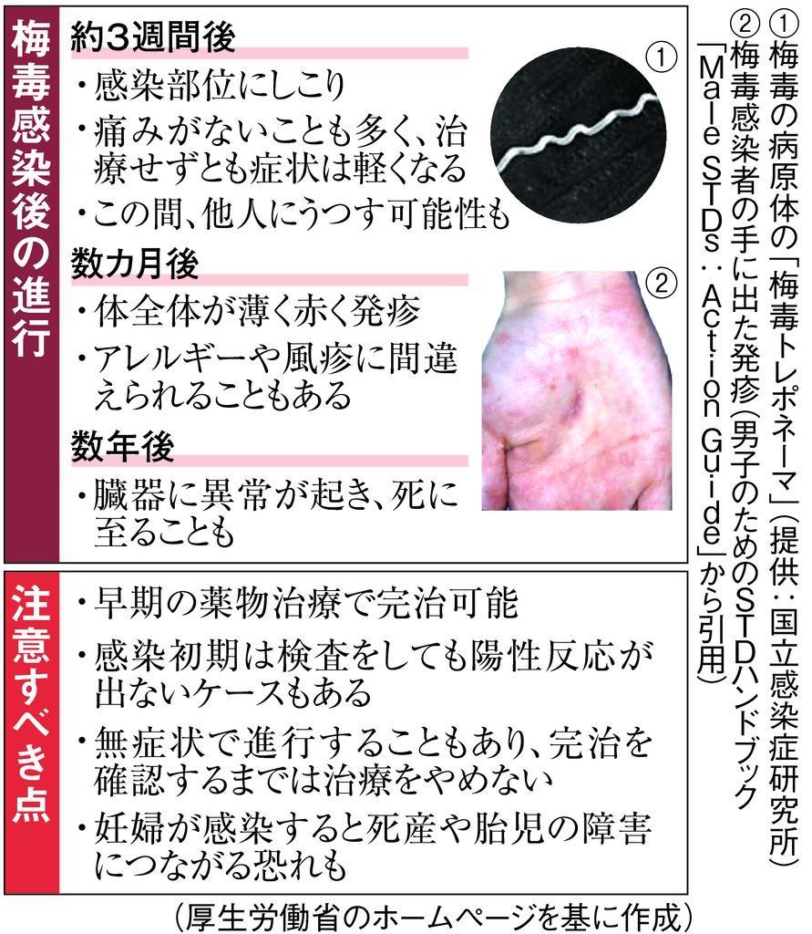梅毒急増、大阪に危機感 目立つ20代女性 , 産経ニュース