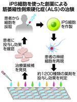 iPS創薬でALS治験 慶応大、症状改善に期待