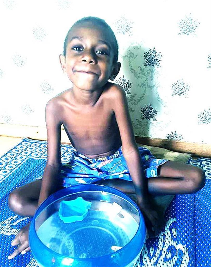 バヌアツの6歳児に支援を 治療に800万円