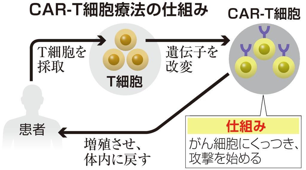 白血病治療薬「キムリア」了承、米国で1回5千万円 - 産経ニュース