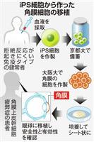 iPS角膜移植、厚労省了承 大阪大、6月実施へ