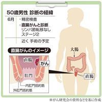 【がん電話相談から】直腸がん、肛門温存術を受けたい