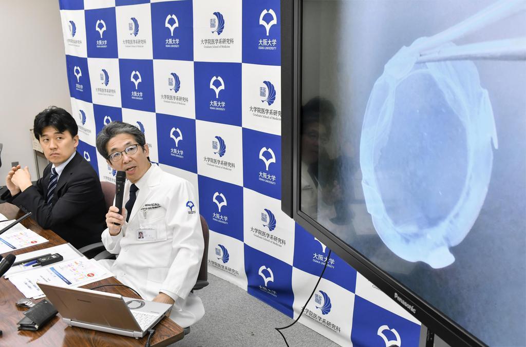 iPS細胞から作製したシート状の角膜組織移植を患者に実施し、記者会見する大阪大の西田幸二教授(右)=29日午後、大阪府吹田市