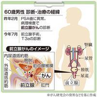 【がん電話相談から】前立腺がん「一か八かの放射線治療」に不安