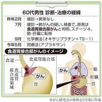 【がん電話相談から】Q:食道胃接合部がん 副作用でボタンもかけられない