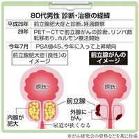 【がん電話相談から】Q:リンパ節・骨転移のある前立腺がん 今後の治療は?