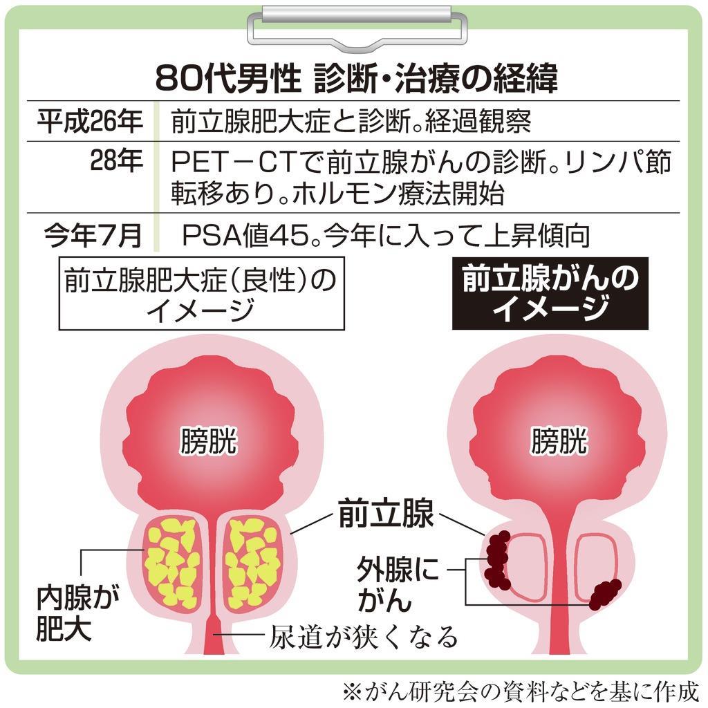 前立腺 が ん 症状