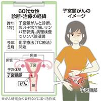 【がん電話相談から】Q:子宮頸がん 術後化学療法で頭髪抜ける