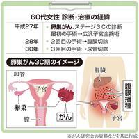 【がん電話相談から】Q:卵巣がんで3度の手術、次の治療法は?