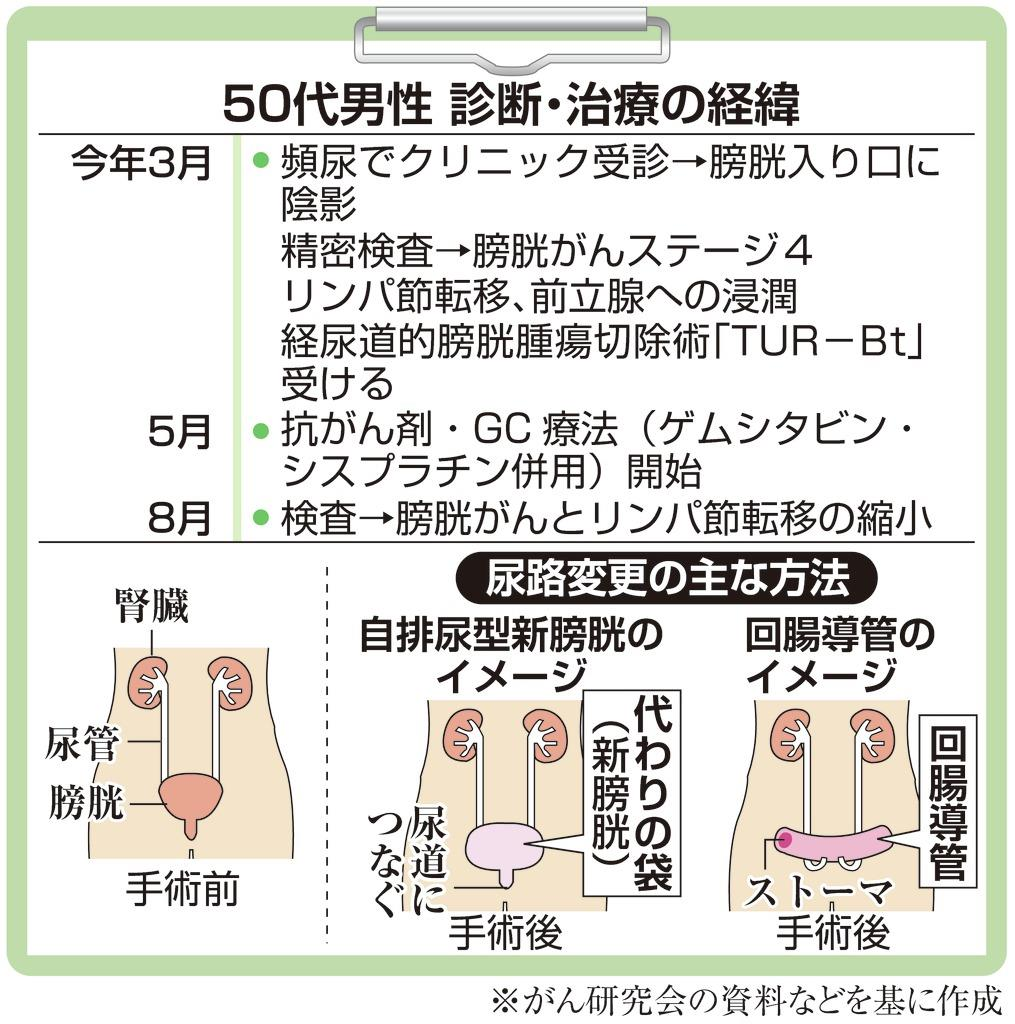 【がん電話相談から】Q:膀胱がん・ステージ4 全摘がうまくい…