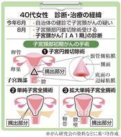 【がん電話相談から】Q:子宮頸部微小浸潤がんで子宮全摘を勧められたが