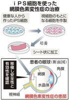 iPSで網膜色素変性症を治療 神戸市立病院が計画申請