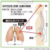 【がん電話相談から】Q:妻が肺がんステージIV、薬剤耐性に不安