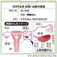 【がん電話相談から】Q:卵巣がん「IC2期」 術後の治療が心配