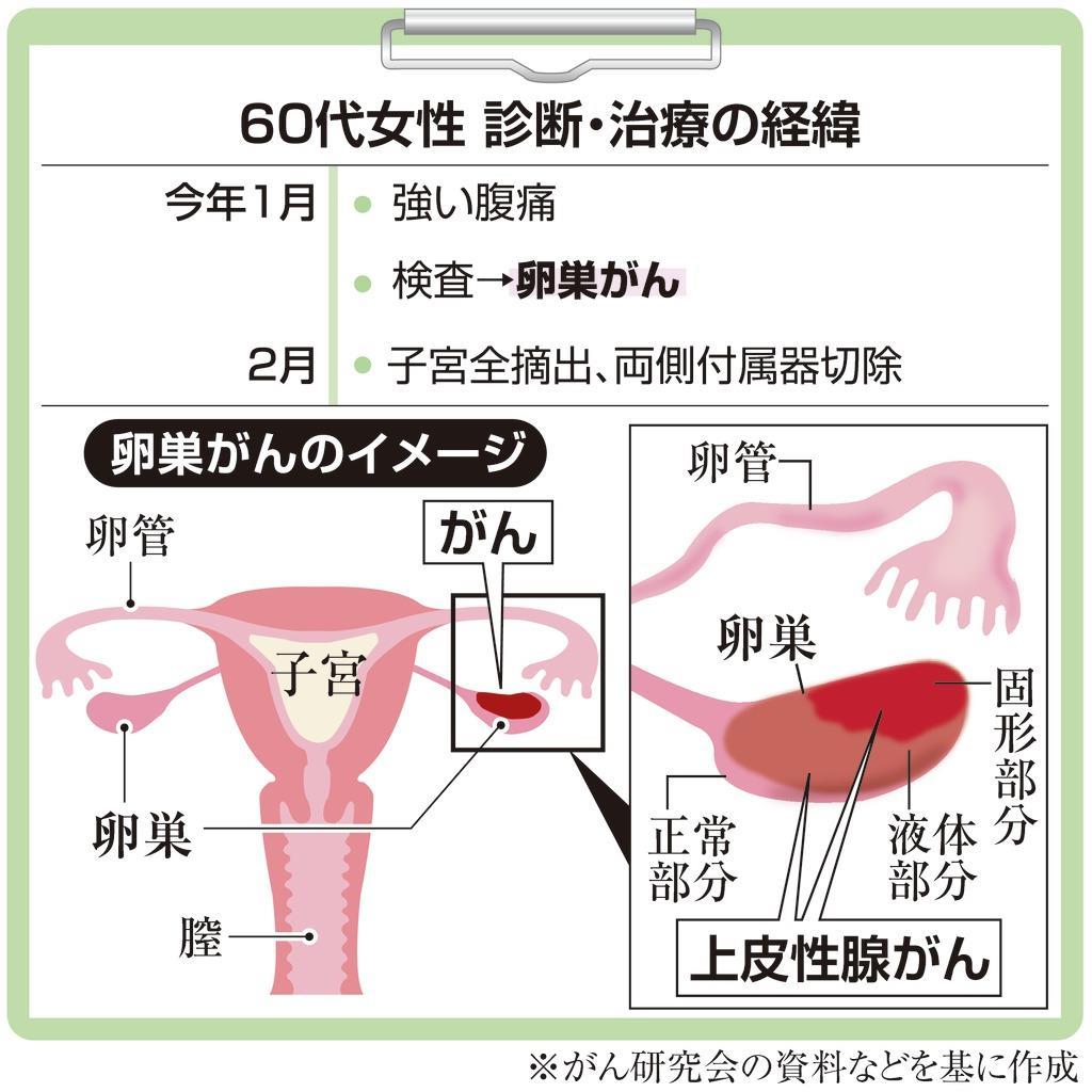 腫瘍 良性 卵巣