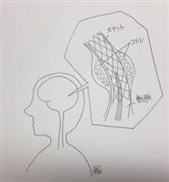 【脳を知る】くも膜下出血 血管閉塞防止にステントの手術も
