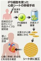 iPSで心臓病治療 大阪大が初の移植 手術は成功