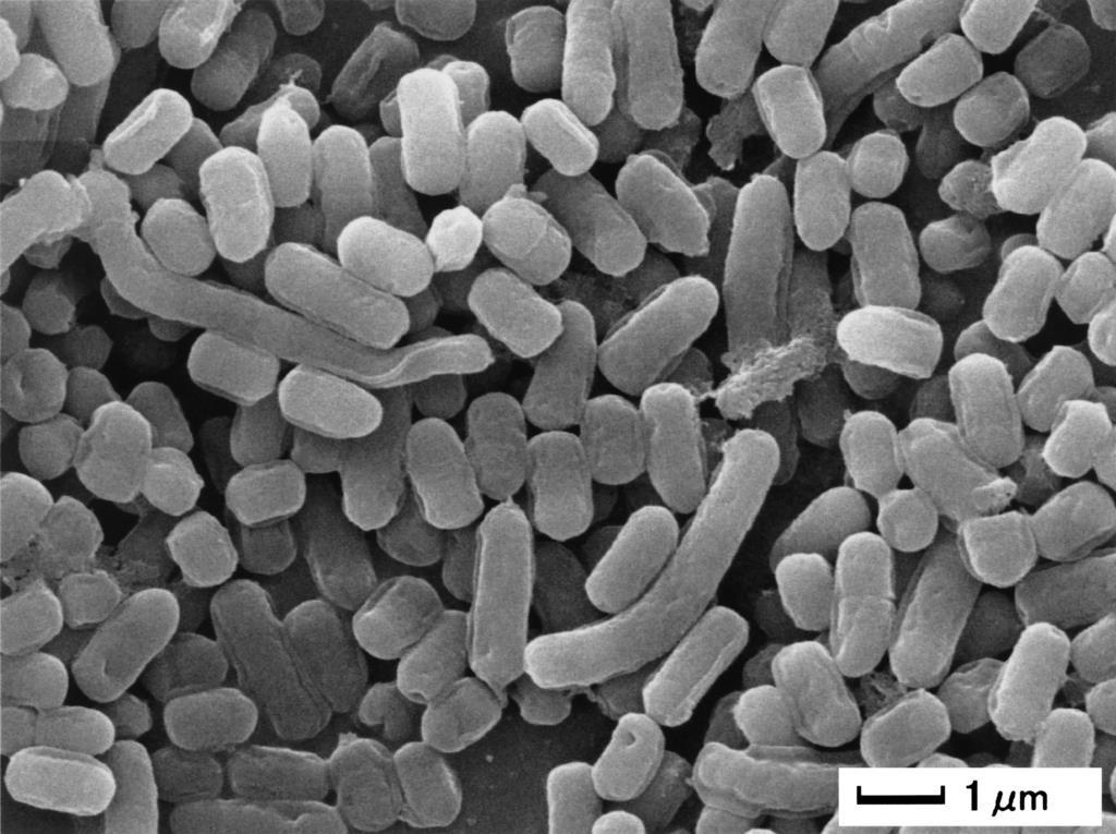 乳酸菌L-137の電子顕微鏡画像(ハウスウェルネスフーズ提供)
