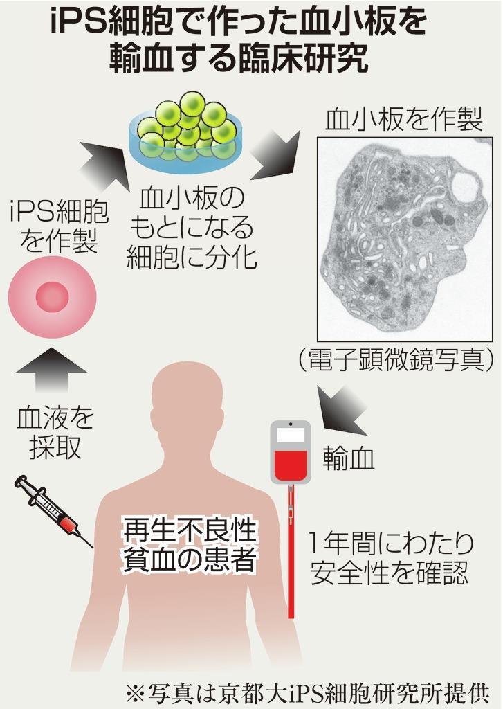 iPS血小板、初の輸血成功 京大