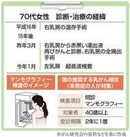 【がん電話相談から】乳がん術後の反対側の乳房、各種検査は必要か