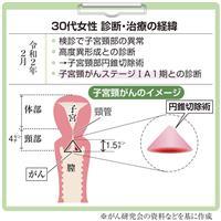 【がん電話相談から】子宮頸がんで妊娠希望 扁平上皮タイプで切除断端が陰性なら可能