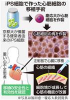 iPS心臓治療、慶応大が厚労省に申請 年内にも移植へ
