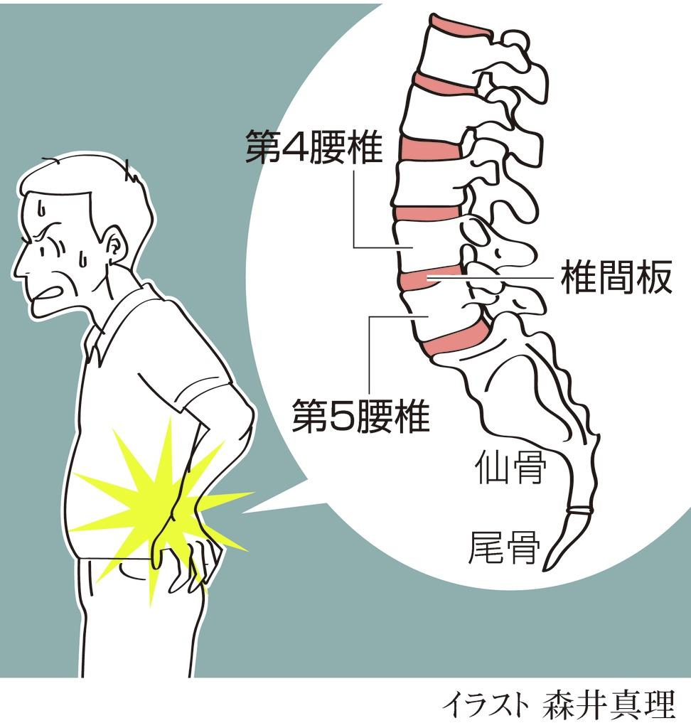治療 ぎっくり腰