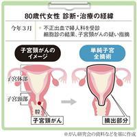 【がん電話相談から】高齢者の子宮頸がん、手術は必要か