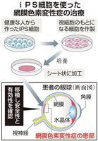 iPSで「網膜色素変性症」治療 神戸の病院の計画了承