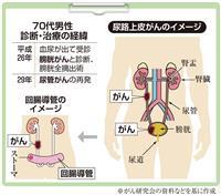 【がん電話相談から】尿管がん再発、今後の治療は?