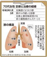 【がん電話相談から】ステージIの肺がん、術後の抗がん剤は必要か