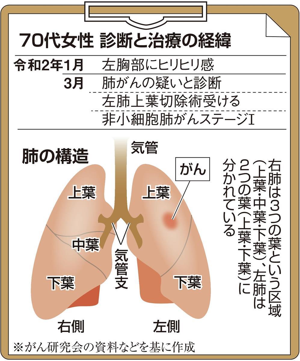 ステージ 肺がん
