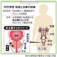 【がん電話相談から】前立腺がん 術後の5年生存率は?