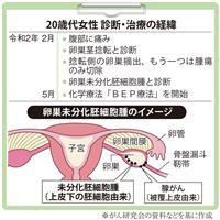 【がん電話相談から】卵巣未分化胚細胞腫、残存卵巣を切除すべきか