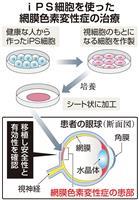 失明患者の再生医療へ一歩 iPS細胞の移植成功で