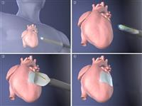 【動画あり】内視鏡で心臓に細胞シート移植 京大など機器開発