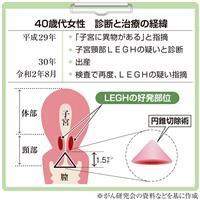 【がん電話相談から】子宮頸部LEGH 子宮全摘出を勧められた