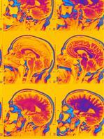 """医療用AIによる""""診断""""が加速する? 米国での保険適用決定が意味すること"""