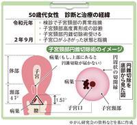 【がん電話相談から】子宮頸部高度異形成 子宮全摘出を提示された