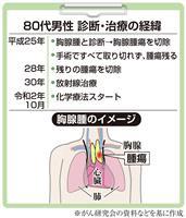【がん電話相談から】胸腺腫術後、化学療法の副作用がつらい