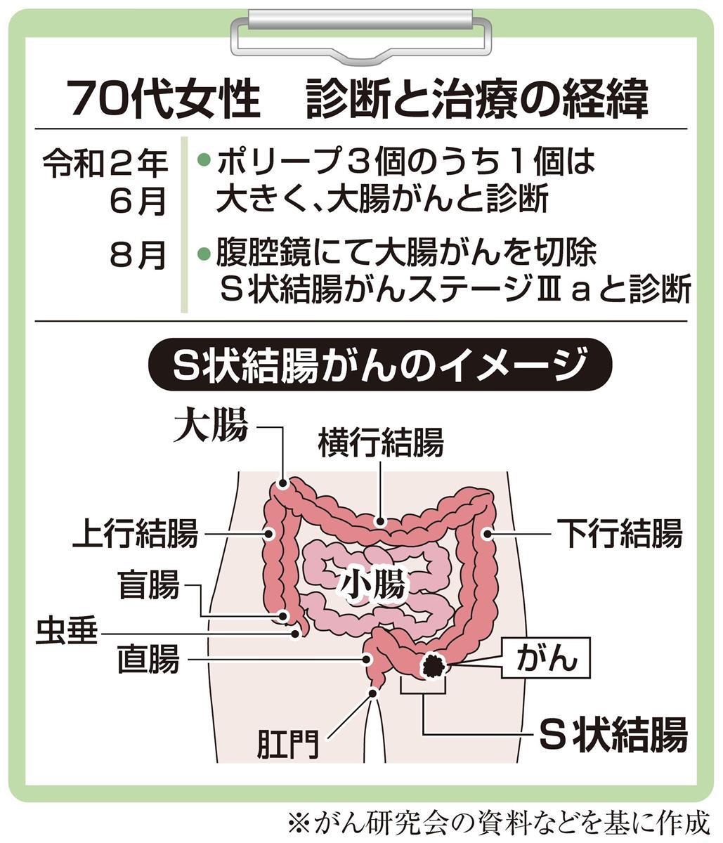 状 結腸 癌 s