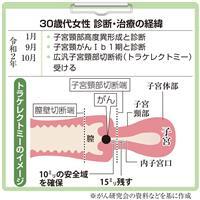 【がん電話相談から】子宮頸がん、トラケレクトミーで切除 「妊孕性温存なら放射線治療でな…