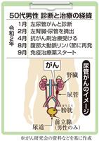 【がん電話相談から】尿管がん術後、リンパ節に再発
