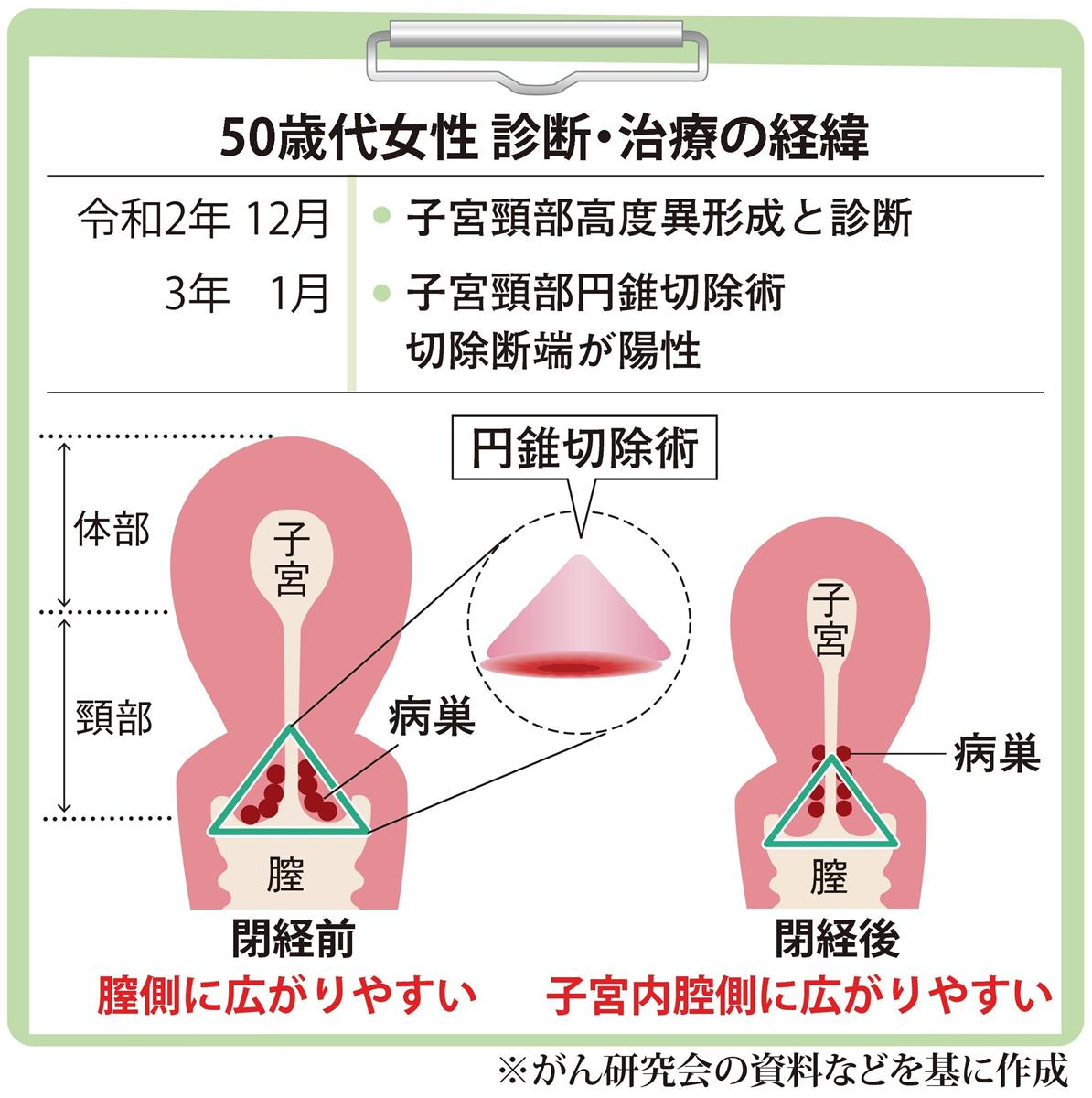 【がん電話相談から】閉経後の子宮頸部円錐切除術で病巣が残った? 経過観察か子宮全摘出か