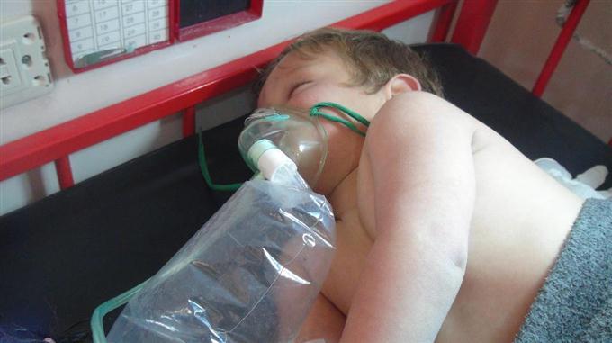 4日、シリア北西部イドリブ県でアサド政権によるとみられる攻撃を受け、病院で治療を受ける子ども(ゲッティ=共同)
