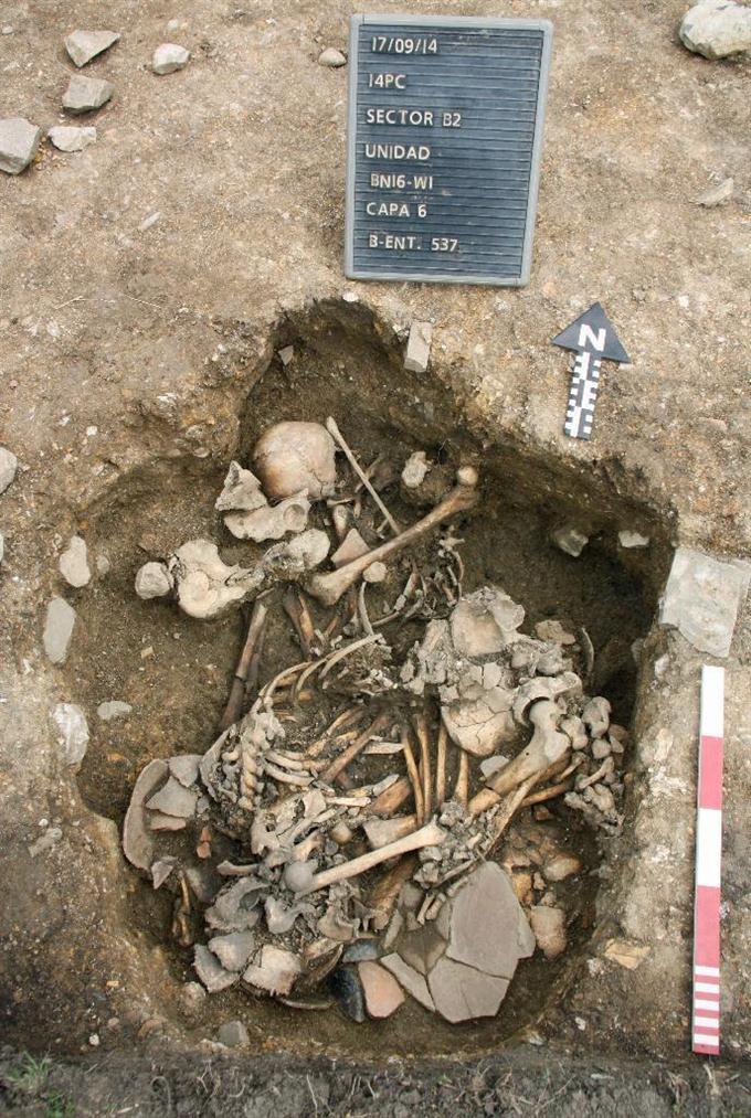 ペルー出土の頭骨に陥没痕 古代...